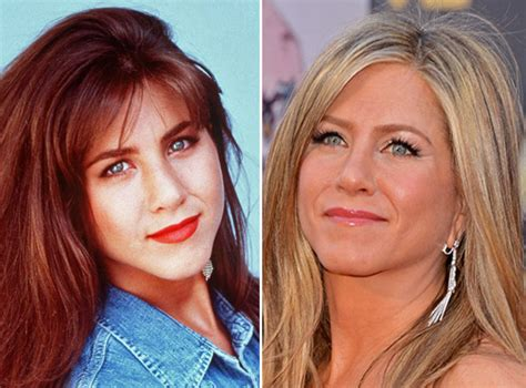 Aniston Second Nose For More Baby by 25 Nose Before And After Photos
