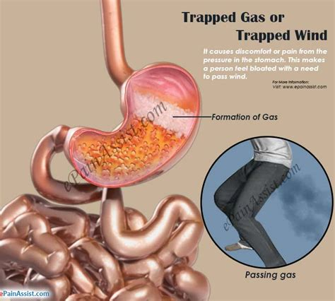 can you paint the inside of a gas fireplace what causes trapped gas pain or trapped wind remedies to