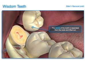 how to remove wisdom teeth at home about wisdom teeth removal wavell family dental chermside