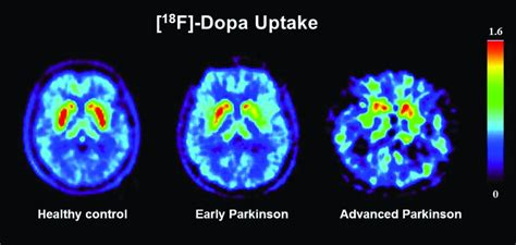 besta parkinson the of functional dopamine transporter spect imaging