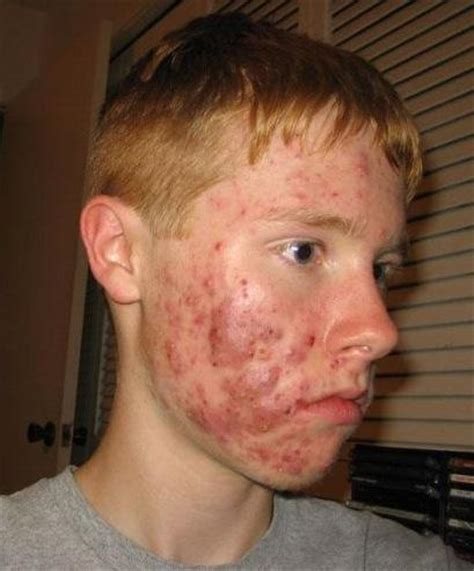 acne on chin how to treat cystic acne on chin things you didn t