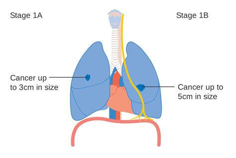 diagram of cancer air pollution affects lung cancer patients regal tribune