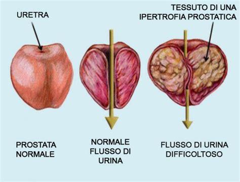 alimentazione prostata ingrossata ipertrofia prostatica sintomi come riconoscerla e