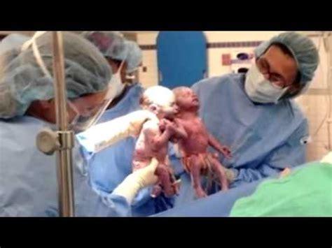 imagenes de niños que nacen pegados conmovedor 2 beb 233 s nacen d 225 ndose la mano en estados