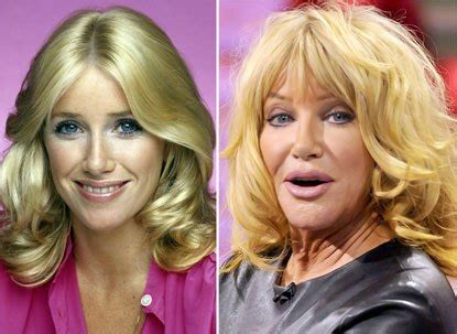 suzanne somers celebrity plastic surgery 24 50 extreme celebrity plastic surgery photos you won t believe