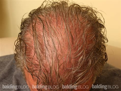 best haircuts for hir loss on crown balding blog hair products archives page 7 of 109