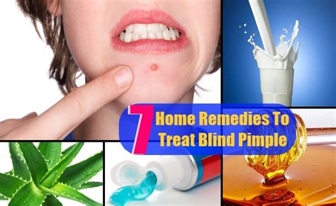 How To Treat Blind Pimples 7 top home remedies to treat blind pimple search home remedy