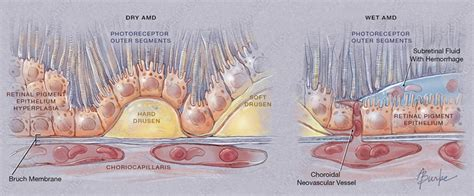 Ls For Macular Degeneration by Alison Burke And Scientific Illustration