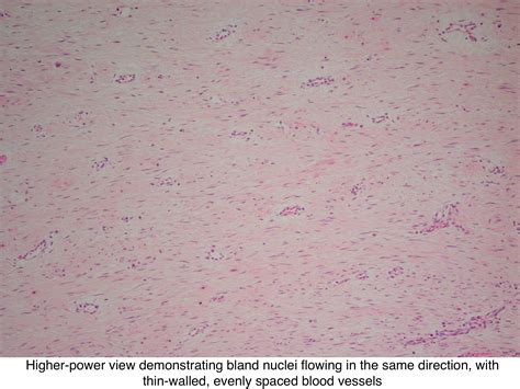 Aggressive Fibromatosis Pathology Outlines by Aggressive Fibromatosis Pathology Outlines Bamboodownunder