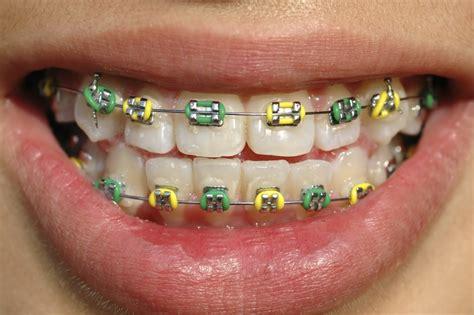braces color selector quiz coloured braces guildford orthodontics surrey bc