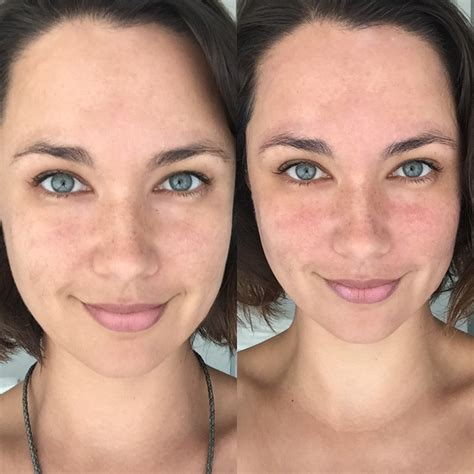 light chemical peel before and after dermalogica bio surface chemical peel and powerbright