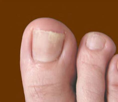 Nail Problems by Toenail Infection Pictures Awesome Nail