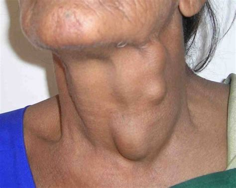 Can Chemo Cause Black Stool by Neck Cancer Symptoms Infobarrel