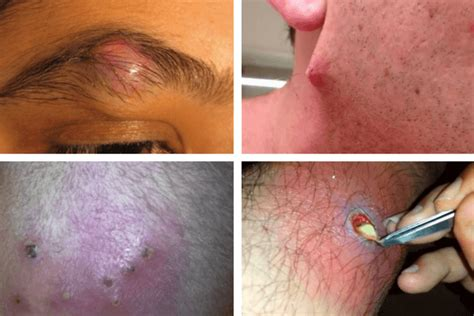infected ingrown hair in groin area infected ingrown hair causes pictures cysts staph