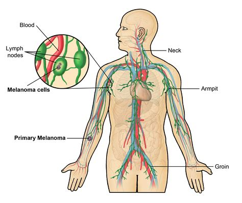 lymph nodes groin diagram lymphatic system groin lymph nodes late effects of