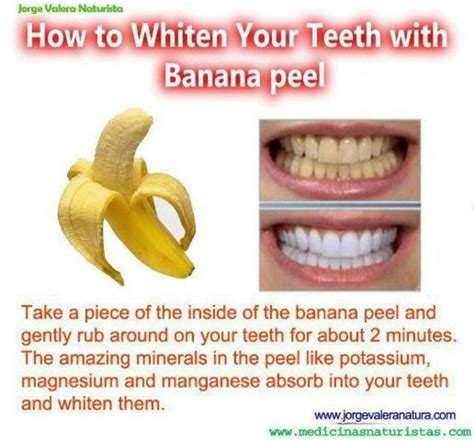 how to clean your s teeth naturally 17 best ideas about banana teeth whitening on white teeth white teeth