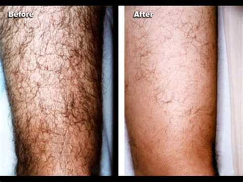 hair removal for men bay area hair removal cream for men best mens hair removal