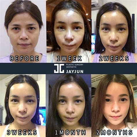 Did Get A Nose 2 by Best 25 Korean Plastic Surgery Ideas On