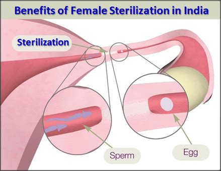 female sterilization during c section what is female sterilization and how does it work indian