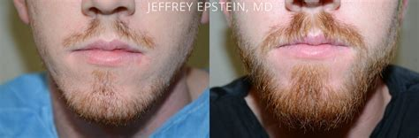 hair restoration before and after pictures clevens face facial hair before and after photos hair restoration