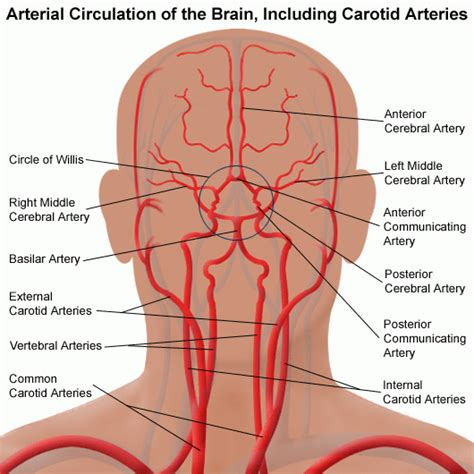 diagram of carotid artery carotid artery disease stanford health care