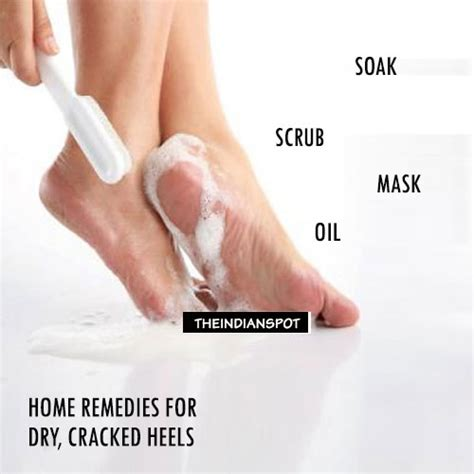 home remedies for cracked heels theindianspot