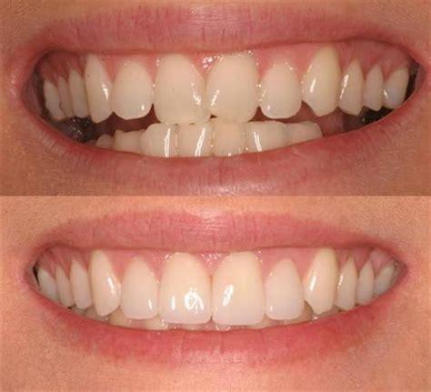 veneers cascade family dental care