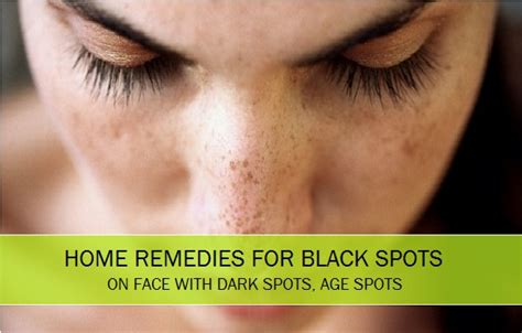 10 best home remedies for black spots spots on