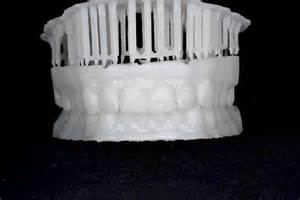 scan your teeth then 3d print them formlabs