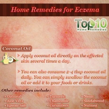 Eczema Home Treatment by Home Remedies For Eczema Top 10 Home Remedies