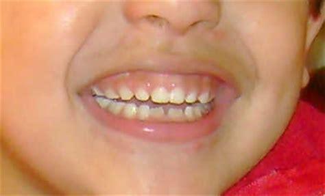 imagenes de niños que se caen a qu 233 edad se caen los dientes de los ni 241 os web del beb 233