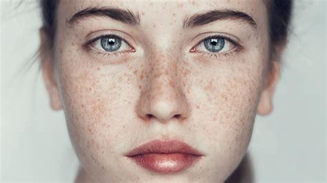 freckles images usseek com