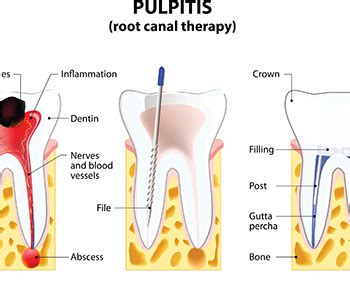 root canal diagram diagram of tooth image collections how to guide and