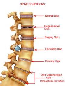 Chiropractic Tables Between Your Vertebrae Are Discs Which Act As Shock