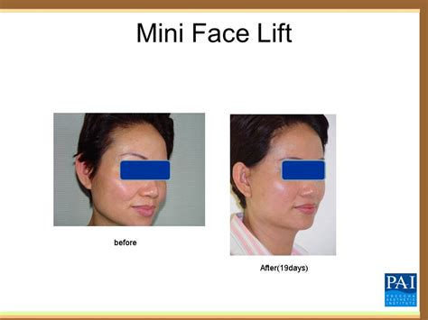 Is A Mini Lift A Facelift Alternative by ศ ลยกรรมด งหน าบางส วน Preecha Aesthetic Institute