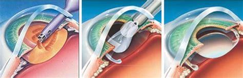 cataract surgery diagram phacoemulsification