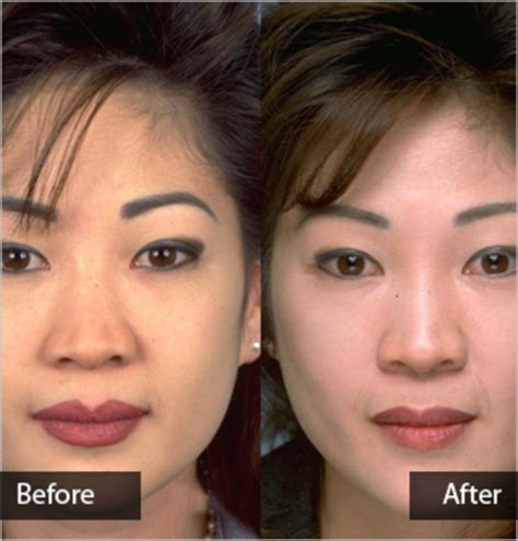 facial feminization procedures transgender plastic surgery transgender surgery costs causes stand gq