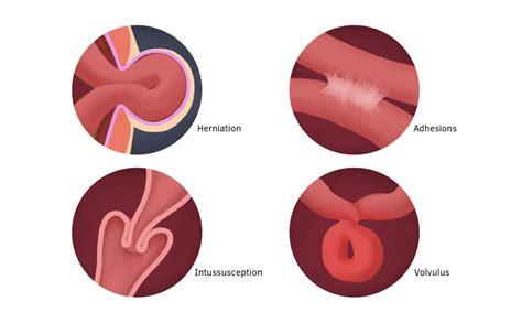 intestinal blockage symptoms paralytic ileus symptoms in infants