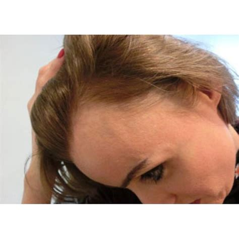 female balding at temples hairstyles do women have receding hairlines going bald or have a