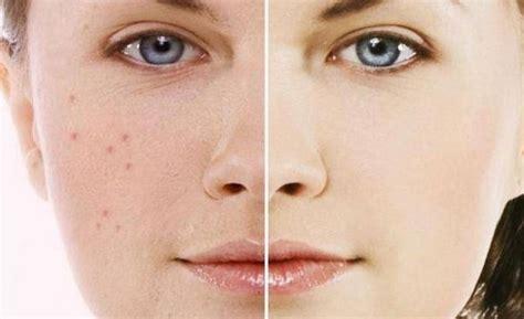Sk Ii Flek Hitam cara menghilangkan flek hitam pada wajah secara alami