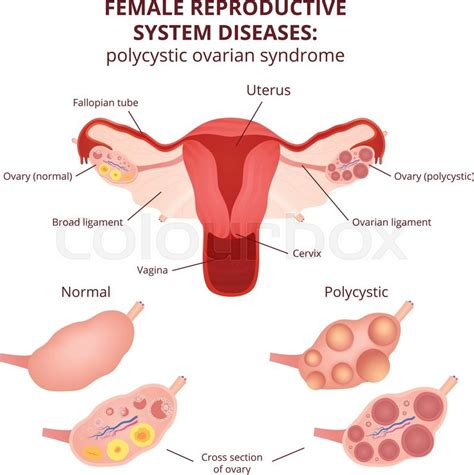 Drawing Of Uterus And Ovaries
