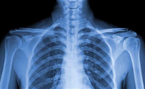 imagenes animadas rayos x rayos x diagnosis centro de diagn 243 stico en rep 250 blica