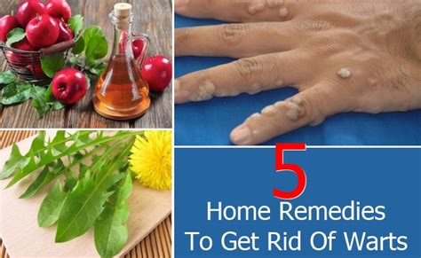 top 5 home remedies to get rid of warts find home remedy