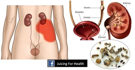When You Are Detoxing Do You Urinate Cells by Kidney Cleanse Reasons Why You Need One And How To Do It