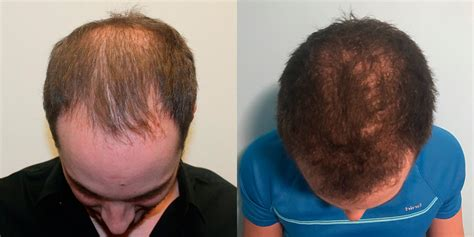 hair plugs for men fue hair transplant before and after photos in florida