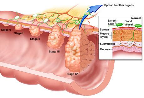 Test To Check For Blood In Stool by Colon Cancer Screening Causes Symptoms Treatment Colon