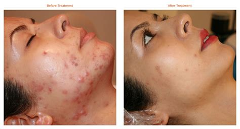 best acne treatment best solution for acne best treatment for acne spots