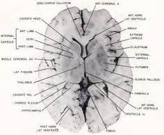 horizontal section of brain 1926 human anatomy print coronal section cerebrum brain