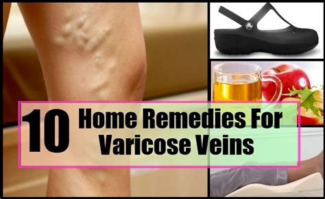 varicose veins home remedies treatments and cures
