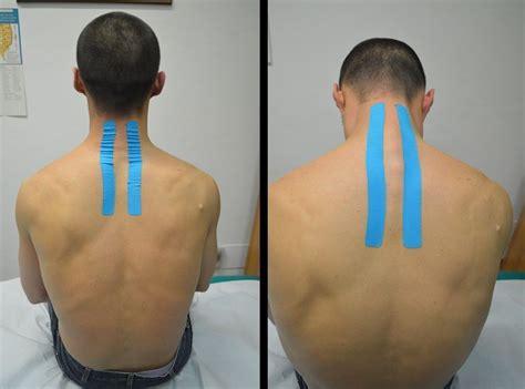 dolore alle gambe a letto rigidit 224 muscolare al collo e alle gambe cause e rimedi